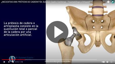 Protesis de cadera en Guadalajara - Traumatólogo y Ortopedista